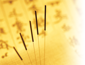 Photo of acupuncture needles