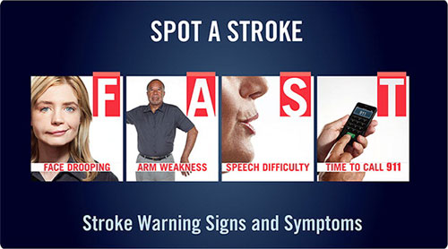 Image depicting stroke symptoms