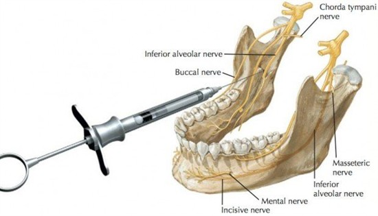 Fractured Mandible Turned into an Anatomy Review