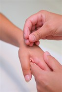 acupuncture treatment demonstration